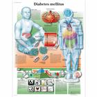 Diabetes mellitus, 4006694 [VR1441UU], Herramientas educativas para diabetes