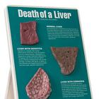 Death of a Liver Easel Display, 1020786 [W43114], Educación sobre drogas y alcohol